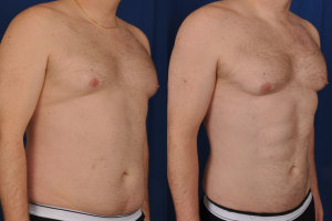 Guide for Gynecomastia